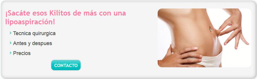 lipoaspiracion precios argentina, lipoaspiracion precios argentina, Lipoescultura Laser costo, lipoaspiracion abdominal, lipoescultura laser, lipolaser,