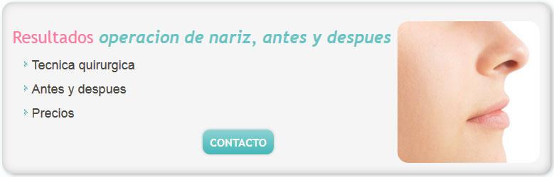 tipos de cirugia de nariz, cirugia de nariz, cirugias de nariz antes y despues, cirugia de nariz precio, cirugia nariz, cuanto cuesta una cirugia de nariz, cuanto cuesta una operacion de nariz en argentina