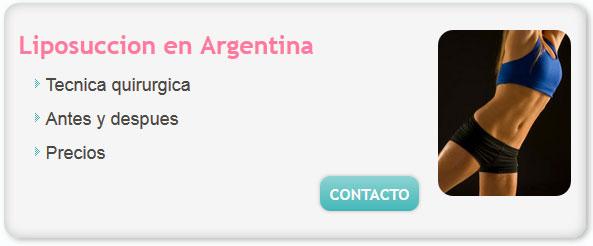 liposuccion precio, liposuccion antes y despues, cuanto sale hacerse una liposuccion en argentina, liposuccion precios argentina, cuanto cuesta la liposuccion, liposuccion en buenos aires precios,