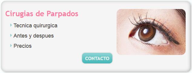 cirugia de ojos, precio de cirugia de parpados, cirugia de parpados costo,  cirugía de parpados, precio cirugia parpados, cirugia de ojos, arrugas en los ojos, blefaroplastia,