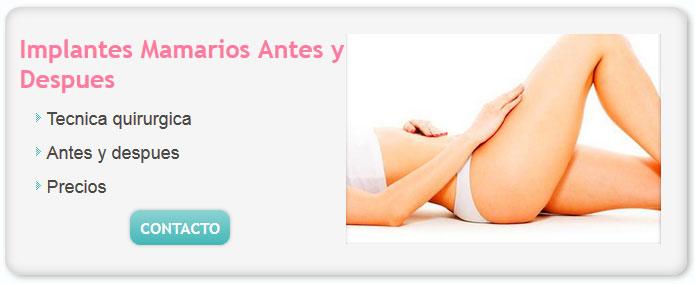 tipos de senos fotos, implantes mamario, aumento de senos, implantes mamarios precios, cirugia mamaria, levantamiento de senos sin protesis, precio de operacion de lolas,