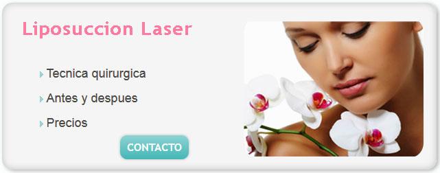 liposuccion precio, liposucción, costo liposuccion, liposuccion sin cirugia precio, cuanto sale una liposuccion en argentina, cuanto sale una liposuccion, liposuccion por laser precios,