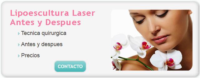 liposucción, liposupcion, liposuccion piernas, costo de liposuccion, costo de una liposuccion, lipoescultura laser sin cirugia, lipoescultura laser antes y despues, lipoaspiración,