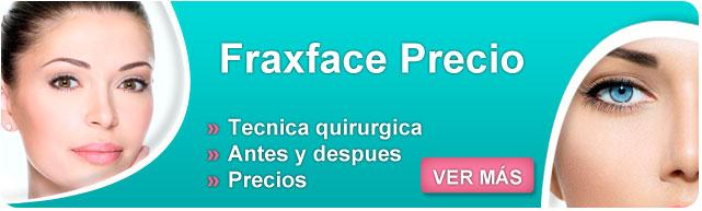 fraxface contraindicaciones, fraxface estrias, fraxface tratamiento, fraxface opiniones, como eliminar las arrugas dela cara, como prevenir arrugas en la cara, mascarillas para arrugas cara,
