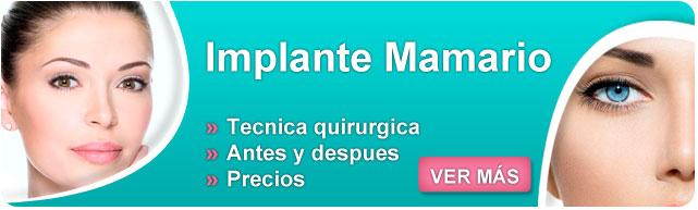 implantes, implantes mamários, implantes mamários precios 2015, mentor protesis, precio de protesis, implantes mamarios, aumento de senos precios, aumento de senos sin implantes,