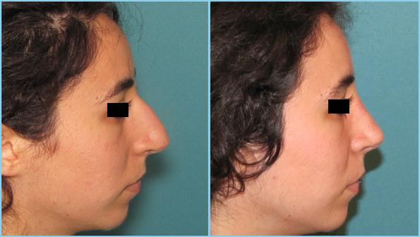 cirugia de nariz ventajas, operacion de nariz fotos antes y despues